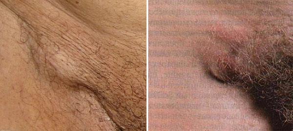 Лимфоузлы в паху воспаляются по разным причинам