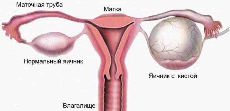 Что делать если болит киста яичника