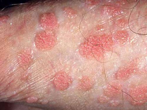 Появление папиллом вызывает вирус папилломы человека