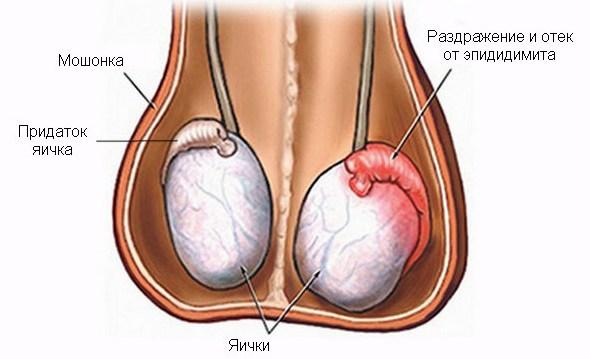 При эпидидимите воспаляется одно или оба яичка