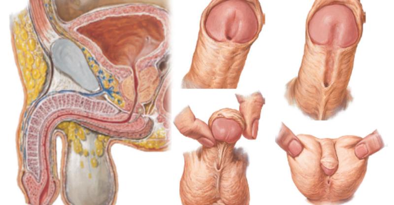 Гипоспадия - это неправильное расположение мочеиспускательного канала у мальчиков