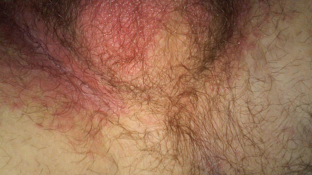 penis scrotum itch Jock