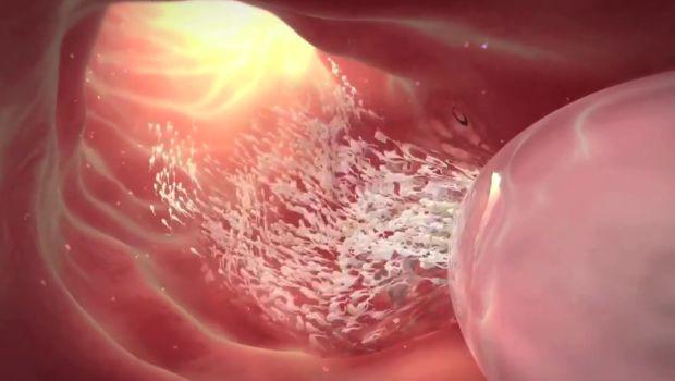 Влагалище и много много спермы44