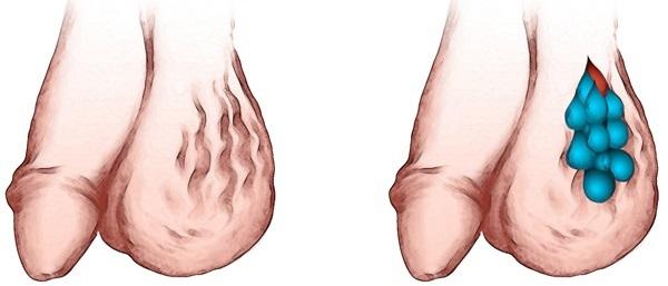 Варикоцеле - это расширение вен яичек