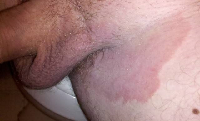покраснение мошонки при паховой эритразме