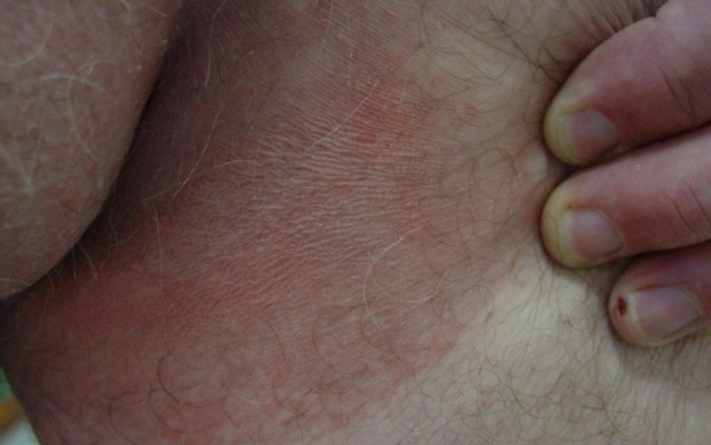 Эритразма чаще всего проявляется в районе паха