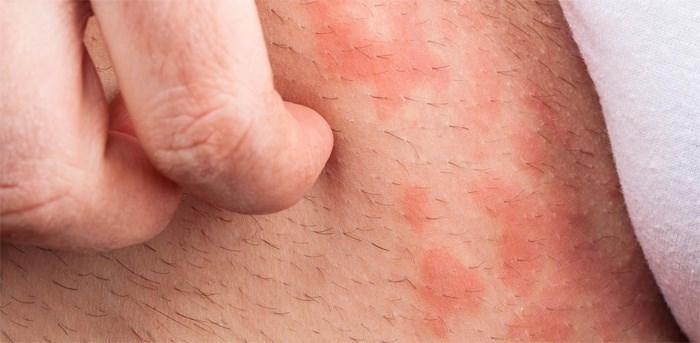 Сыпь может быть спровоцирована аллергией или чесоткой