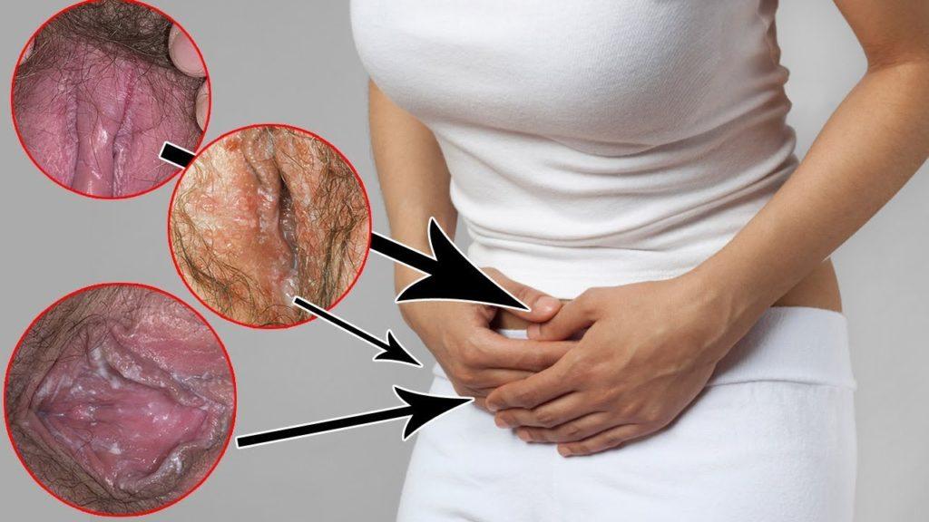 Зуд после антибиотиков почему чешется и что делать