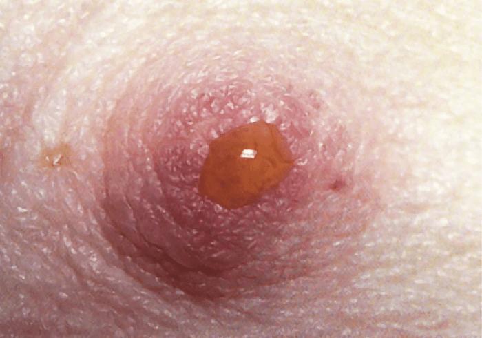 Выделение из грудей при беременности - норма