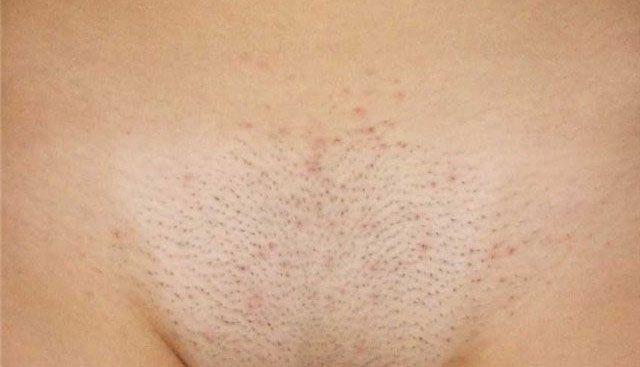 Волосы могут зачастую выпадать на лобке у женщин и мужчин