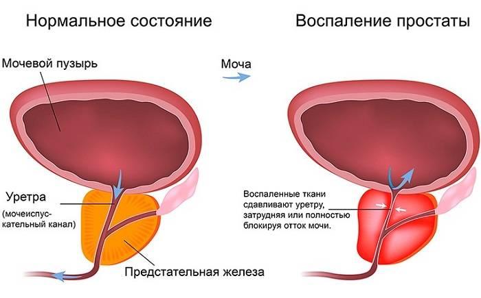 Простатит - это воспаление простаты у мужчин