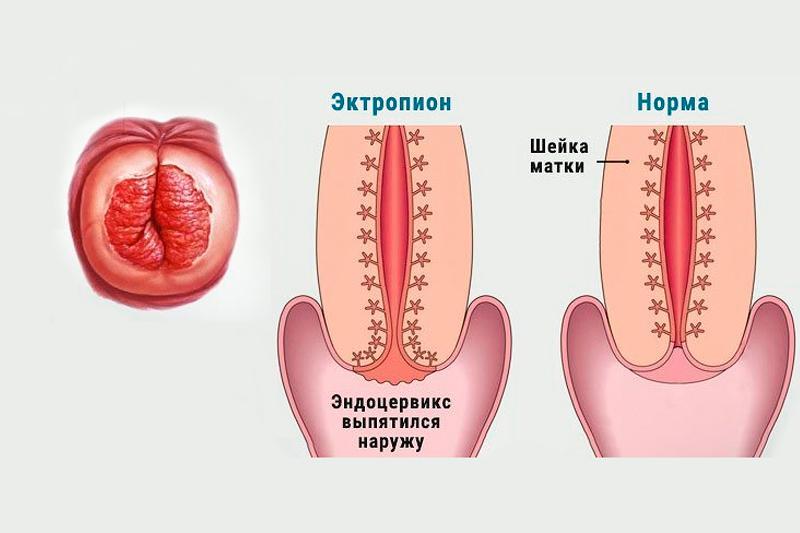 Эктропион - состояние, при котором шейка матки выпячивает наружу