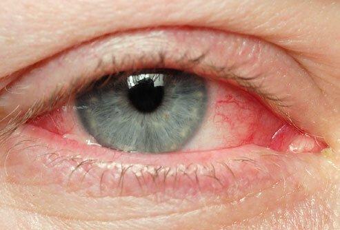 Хламидийный конъюнктивит - серьезное поражение глаз