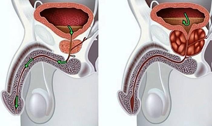 Калькулезный простатит - это запущенная форма хронического простатита