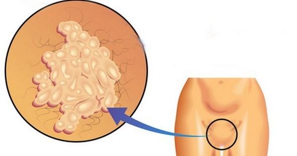 Папилломы во влагалище встречаются у женщин, больных ВПЧ