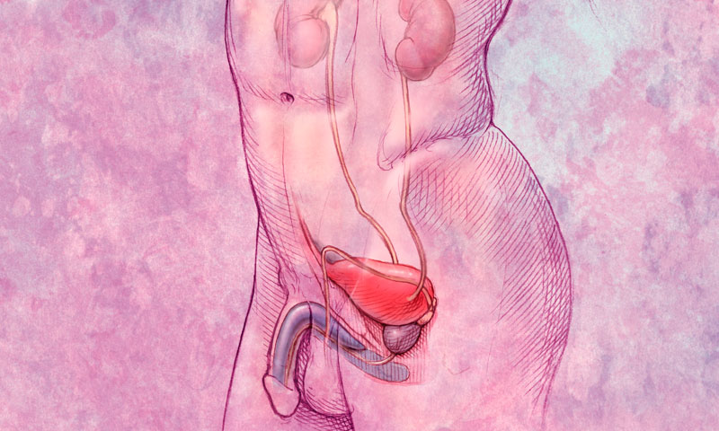 Цистит - это воспаление в мочеиспускательной системе