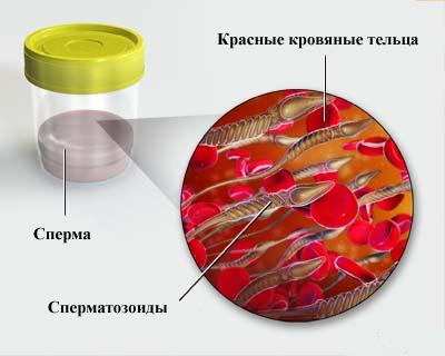 При обнаружении крови в сперме нужно обратиться к врачу