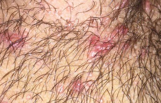 Волдыри на лобке могут появиться из-за неправильной методики бритья