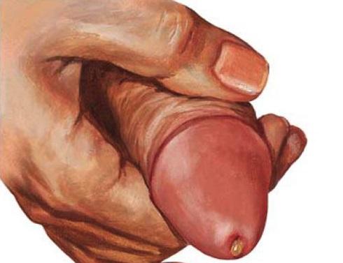 Гнойные выделения говорят о венерических болезнях