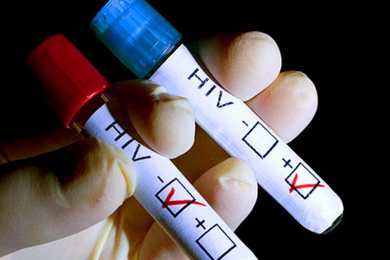 ВИЧ можно повернуть в состояние ремиссии