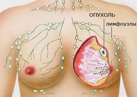 Опухоль груди подлежит обязательному вырезанию