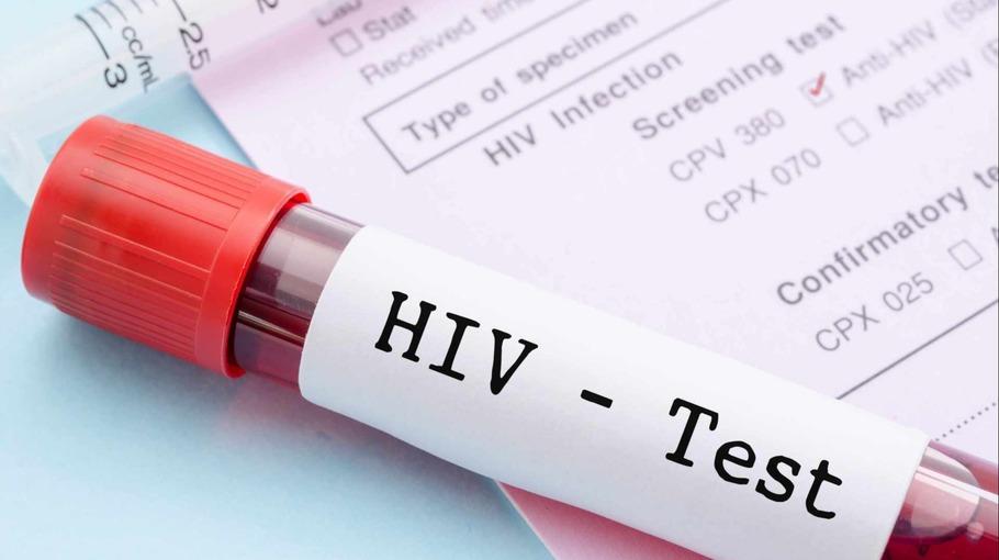 Существует несколько видов тестов на ВИЧ