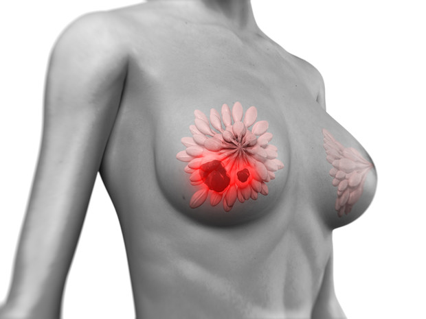 При обнаружении шишек в груди нужно обратиться к маммологу