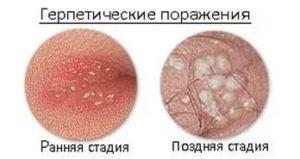 Шарик на левой половой губе