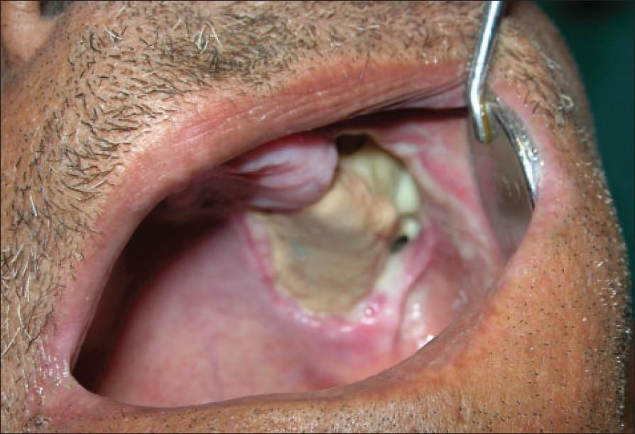 Как проявляется сифилис во рту
