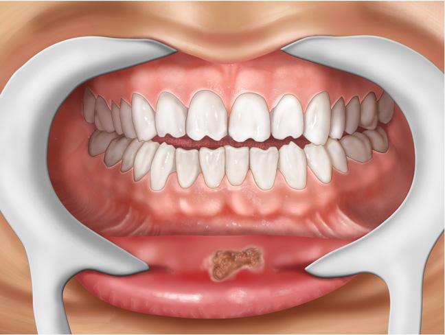 Сифилис в полости рта: на губах и языке