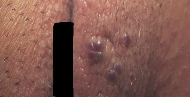 Варикоз половых губ фото