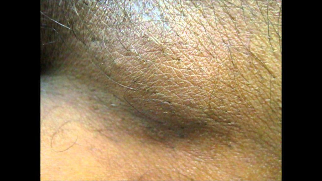 увеличенные лимфоузлы в паху
