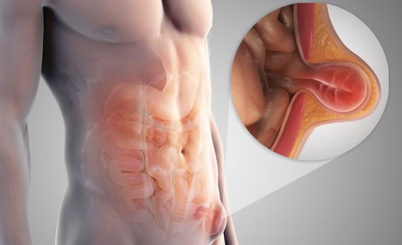 От чего происходит воспаление лимфоузлов в паху у женщин