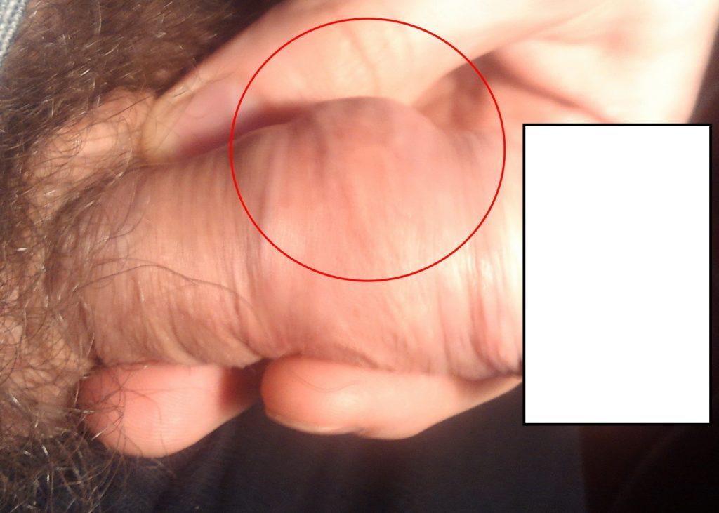 Шишки на члене фото причины лечение