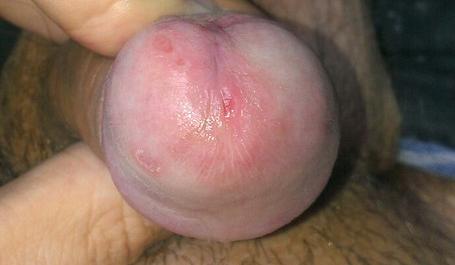 Белая сыпь при отсутствии гигиены