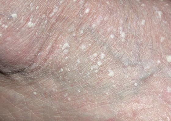 Шелушиться кожа между ног и чешется