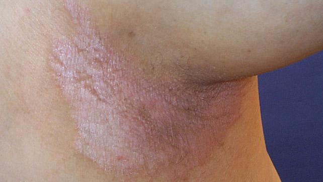 Псориаз в паху у женщин лечение 5