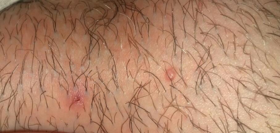 Прыщ на лобковой части у женщин причины 46