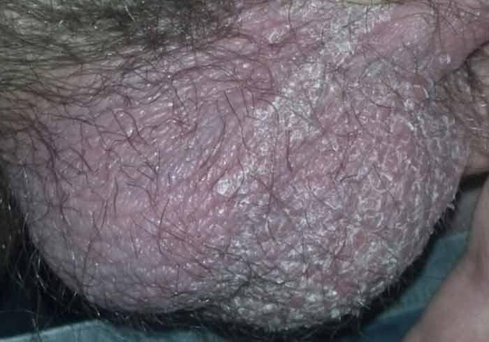 псориаз на головке у мужчин