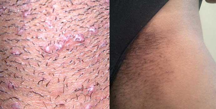 infection-after-bikini-shaving-hd-nude-most-beautiful-girls