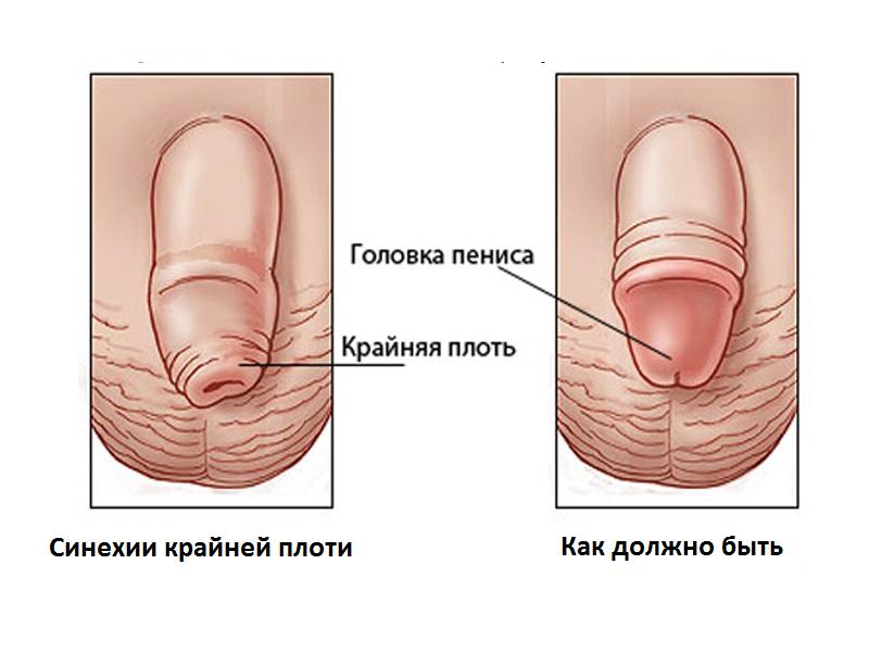 Синехии - это спайки между крайней плотью и головкой
