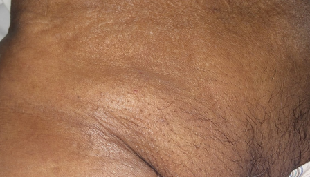 Причины и лечение боли в паху у женщин