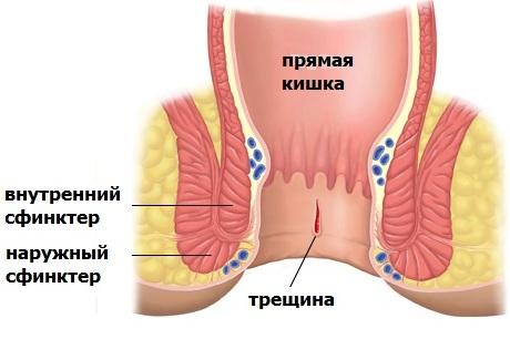 Анальная трещина может быть хронической или острой