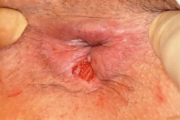 Свищ на заднице, девушка ест сперму порно фото