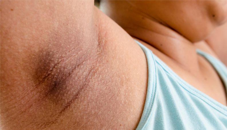 псориаз в интимной зоне как лечить
