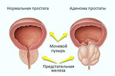Аденома - доброкачественная опухоль предстательной железы