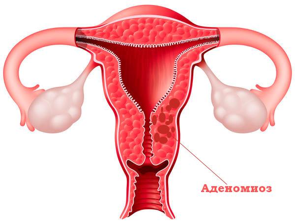 Аденомиоз - доброкачественное новообразование на матке
