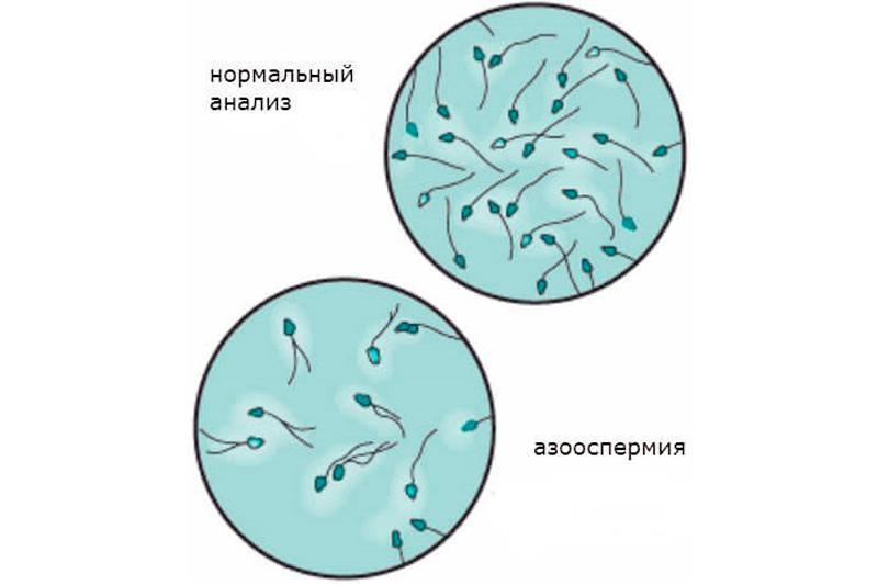 Азооспермия - причина мужского бесплодия