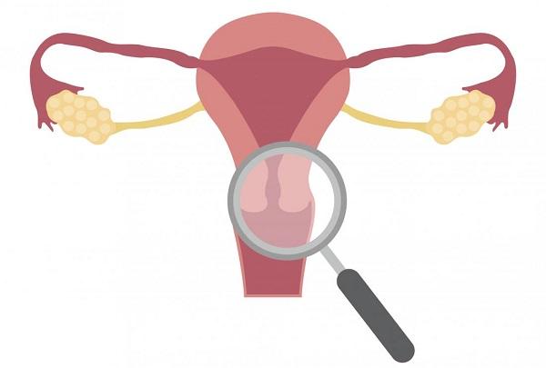 Эрозия шейки матки встречается у многих женщин