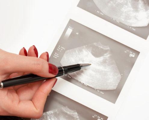 Как выглядит киста яичника у женщин фото
